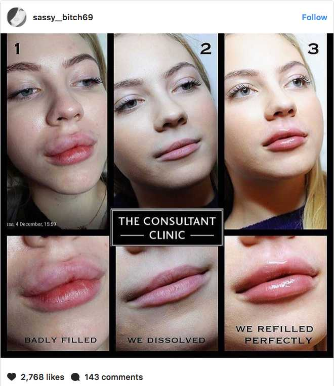 Your Lip Fillers Need To Know The Cost How Long They