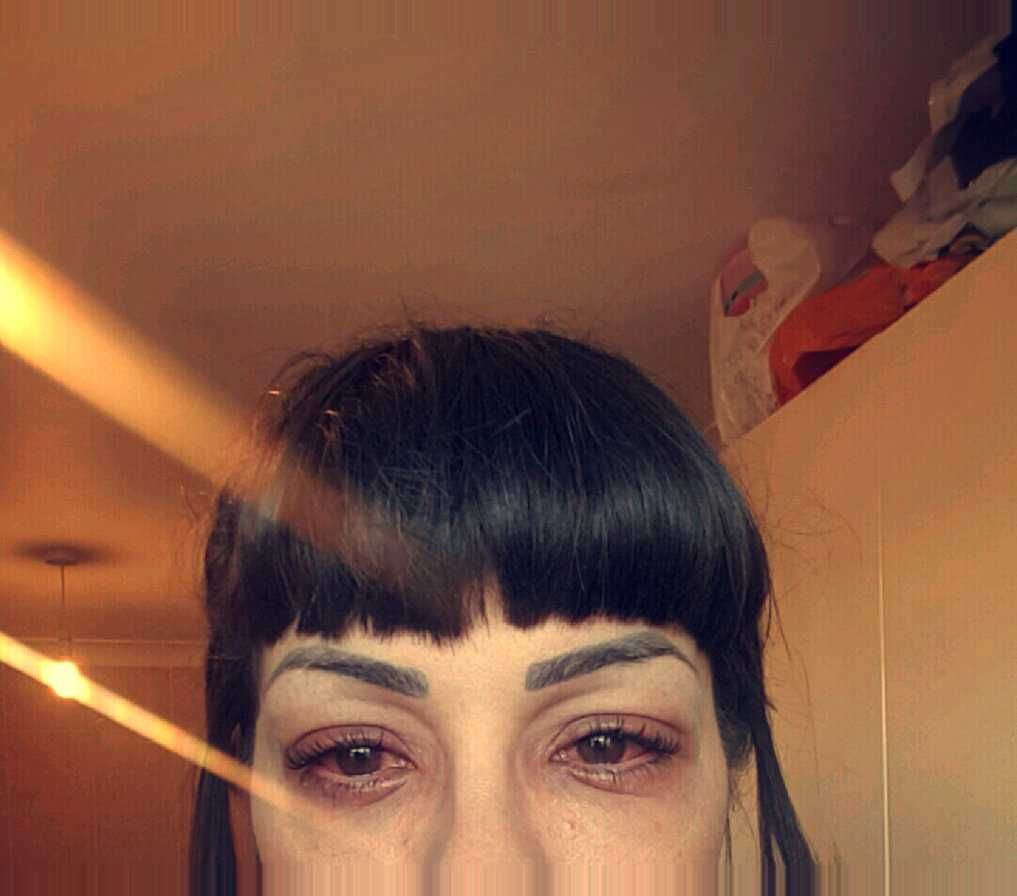 This Woman Suffered An Allergic Reaction From An Eyelash Treatment