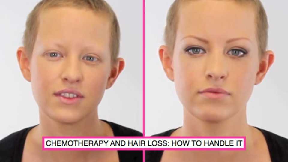 dealing-with-hair-loss-after-chemo-therapy এর ছবির ফলাফল