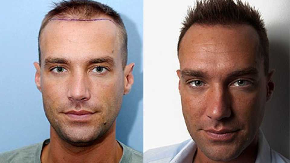 Great Hair Transplant, Florida Hair Restoration Clinic ...