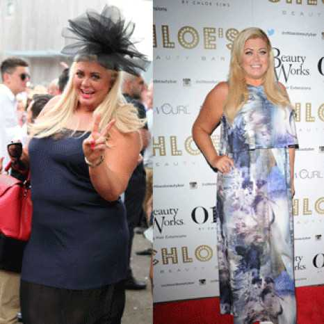 How Gemma Collins lost three stone: From Hypno Gastric ...