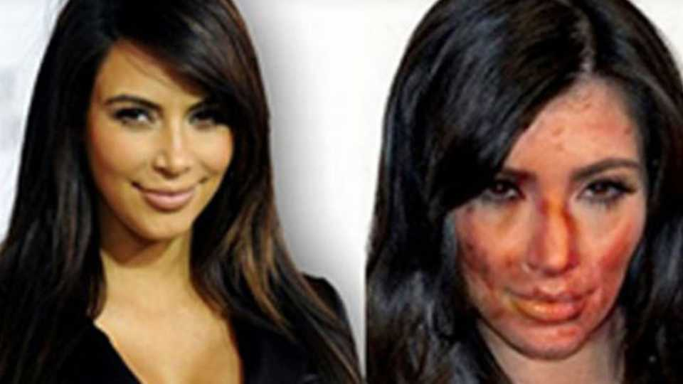 Photoshopped celebrity pics before and after drugs